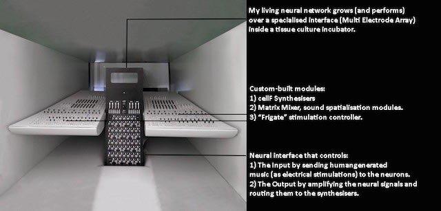 Synthé